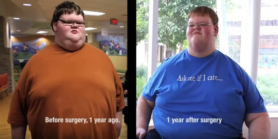 jacob miller weight loss